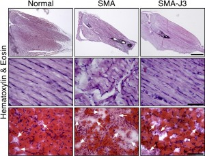 From left to right: Microscopic images comparing the hind leg muscles of normal mice, mice with spinal muscular atrophy, and mice with spinal muscular atrophy that have had the enzyme JNK3 inhibited. JNK3 deficiency appears to reduce muscle degeneration (muscle-wasting) and increase muscle growth in mice with the disease. Image courtesy of the journal Human Molecular Genetics.
