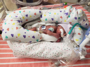 Camila was cared for in the Level IV neonatal intensive care unit (NICU) at El Paso Children's Hospital